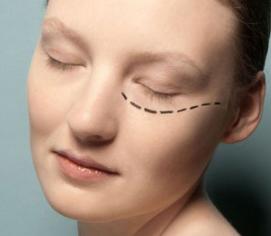 上海奉浦医院整形科激光祛黑眼圈手术费用 价格不贵
