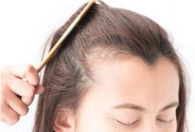 头发少能做头发移植吗 济南韩氏整形孔涛助您挽救发际线