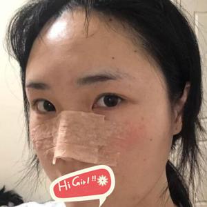 分享北京宝岛整形医院假体隆鼻亲身体验 鼻型立体很自然哦