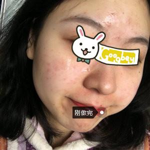 温州玉熙整形医院光子嫩肤心得分享 让我彻底告别满脸痘印