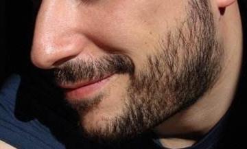 南昌宏昌植发整形医院胡须种植多久有效果