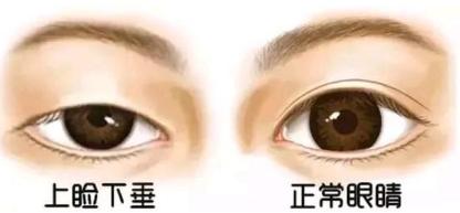 上眼睑下垂矫正危险吗 沈阳杏林整形王贵雄专业矫正不留痕