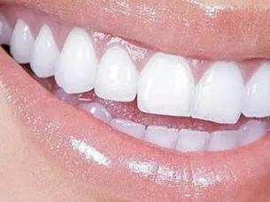 沈阳亿美佳口腔门诊部烤瓷牙手术过程 色泽逼真自然