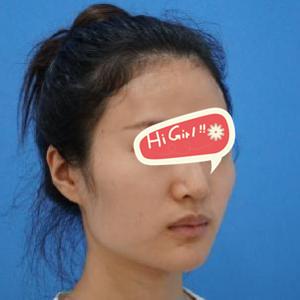 广州博仕整形医院下颌角磨骨案例 脸小了一圈 效果堪比换头