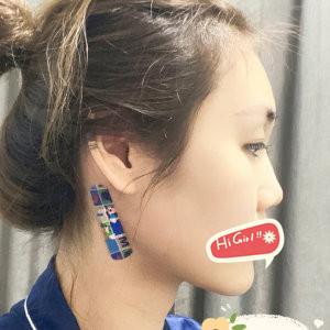杭州美黎美整形医院耳软骨隆鼻效果图分享 混血小翘鼻超美