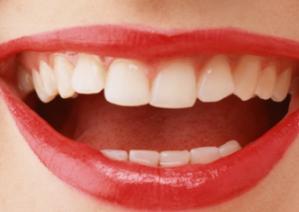 牙齿矫正黄金年龄 深圳陈静口腔诊所做牙齿矫正过程