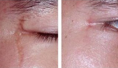 激光祛疤的原理 贵阳华美整形医院陈庆波祛疤无痕 美丽重塑