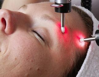激光祛痘的流程分享 天津维美整形医院余永利皮肤管理大师