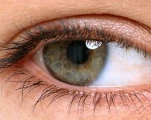 广州美莱整形医院开眼角恢复过程 田跃平私人订制美眼