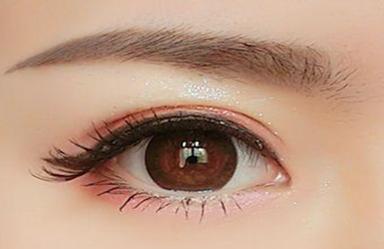 什么是韩式三点双眼皮 郑州菲林整形医院骆豫打造明眸翘睫