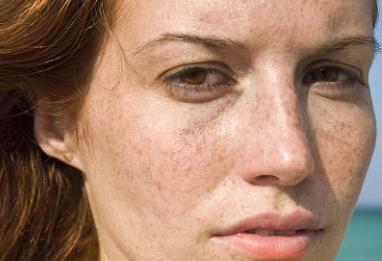 激光祛斑会留疤吗 长沙雅美整形医院曾多祛斑无痕 专业美肌