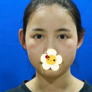 上海东方医院整形科切开双眼皮真人效果图 应该早点割的