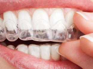 牙齿矫正的疗程长吗 武汉同济医院口腔科隐形牙齿矫正过程