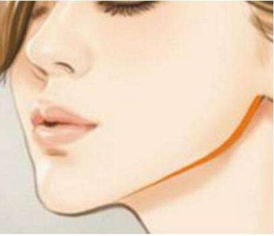 吉林大学中日联谊医院下颌角整形手术优点 费用高不高