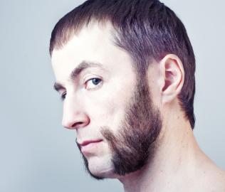 北京新面孔植发医院胡须种植会脱落吗 私人订制胡须形状