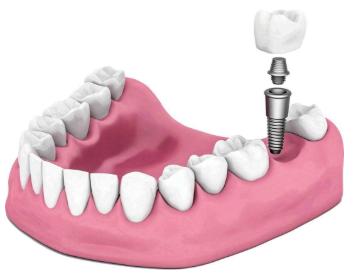 种植牙不能吃什么 南宁东方整形医院张建种植牙坚固舒适