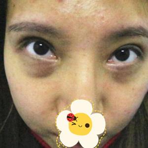遗传黑眼圈怎么去 郑州上城整形医院激光去黑眼圈案例 超赞