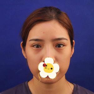 南宁达美整形医院双眼皮修复案例 眼睛自然多了 线条很流畅