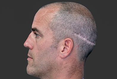 疤痕植发注意事项 成都美莱整形雷送林经验丰富 效果显著