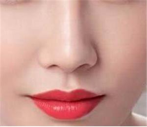 隆鼻手术为什么会失败 长沙爱思特吴蒙高难度隆鼻修复名医