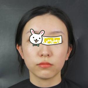 青岛博士整形医院面部吸脂心得分享 消灭双下巴 成就小V脸