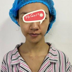 在西安华京整形医院做热玛吉除皱后年轻五岁不是梦 很推荐