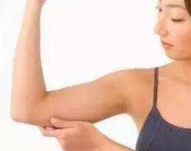 北京联合丽格整形医院陈万芳手臂吸脂精确安全 摆脱蝴蝶袖