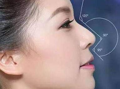 北京英煌整形医院王勋耳软骨垫鼻尖多少钱 精致翘鼻再现