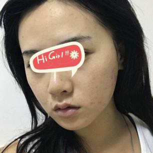青岛时光整形医院下颌角磨骨真实案例 脸型变得好漂亮呀