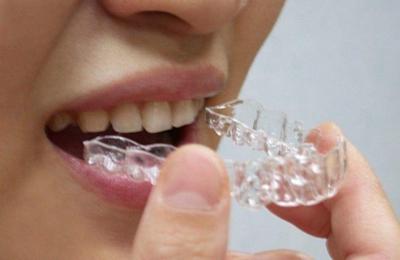 四川成都娇点武刚做牙齿矫正多少钱 牙齿矫正的方法