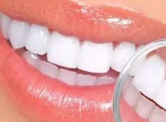 广州广大口腔整形医院牙齿矫正需要花费多少钱