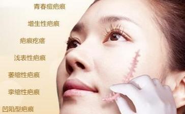 南宁韩星整形医院疤痕修复方法 黄新谈术后禁忌