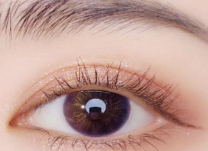 如何预防上眼睑下垂 广州海峡整形医院上睑下垂矫正多少钱