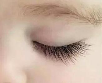 广州韩妃整形医院睫毛种植多少钱 种植越多越好吗