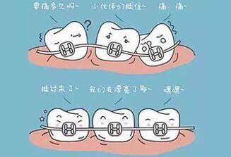 牙齿矫正有年龄限制吗 西安华艺整形医院张育新矫正优惠中