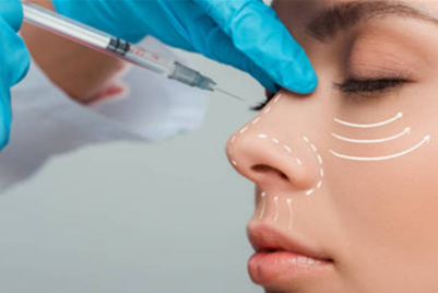 玻尿酸隆鼻能维持多久 广州紫馨整形于晓强操作专业更持久