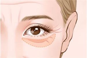 祛眼袋非手术方法哪种好 广州威利斯激光祛眼袋有何优势