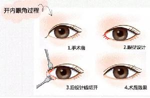 开内眼角手术留疤怎么办 贵阳凯丽思整形医院 教你如何避免