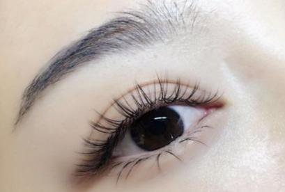眼睑下垂会遗传吗 包头华美整形医院矫正优惠 为您开阔视野