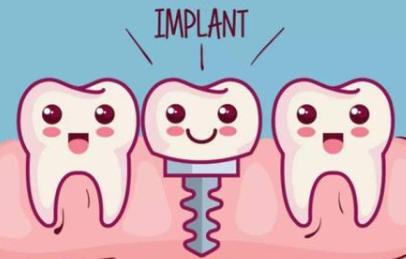 贵阳华美整形医院种植牙多少钱 莫小红专注口腔治疗多年