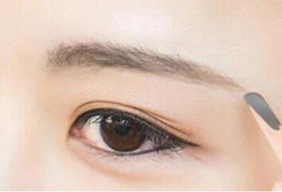 广安悦美整形医院激光去眼袋效果不错 告别难看眼袋
