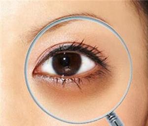 激光祛黑眼圈有没有副作用 南昌美皇整形医院去黑眼圈优势