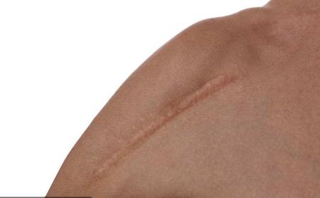 河北人民医院整形科疤痕切除需要多少钱 多久能恢复