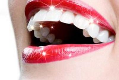 西安壹加壹整形医院牙齿贴面多少钱 杜岗为微笑加分