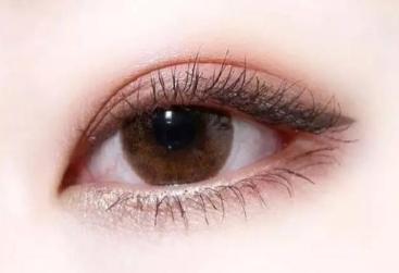 什么是微创双眼皮 成都华人医联整形高亮打造流畅双眼皮