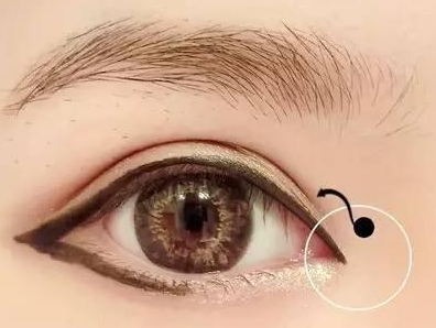 开内眼角方法知多少 沈阳杏林整形医院房红超开内眼角优惠
