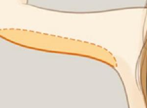 保定手臂吸脂哪家比较好 手臂吸脂减肥需要多少钱