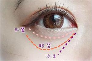 激光祛眼袋多少钱大概 天津美联致美无痕祛眼袋 靓丽双眸