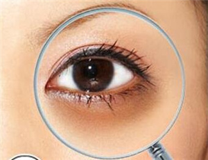 什么方法能祛黑眼圈 重庆天艺美激光去黑眼圈有何优势
