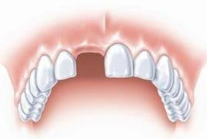 南宁东方整形医院种植牙多少钱 徐敏种植牙舒适度高